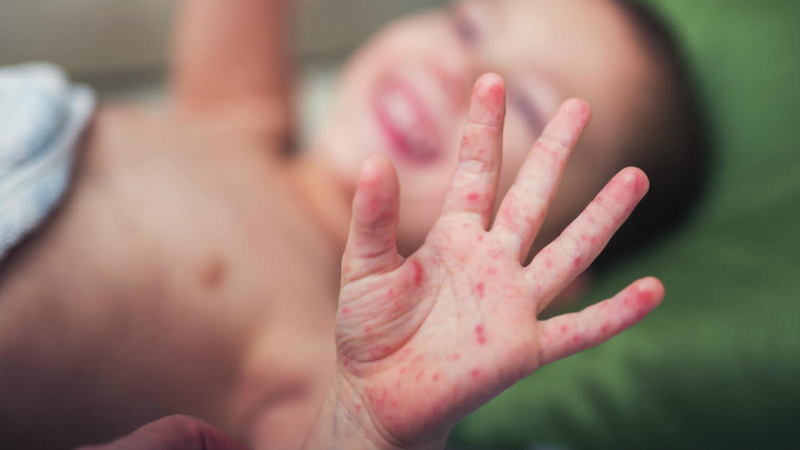 Co giật do sốt thể phức tạp cần theo dõi phòng ngừa biến chứng