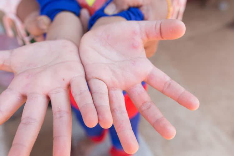 Hướng dẫn phòng & chăm sóc trẻ bị bệnh tay chân miệng | Vinmec